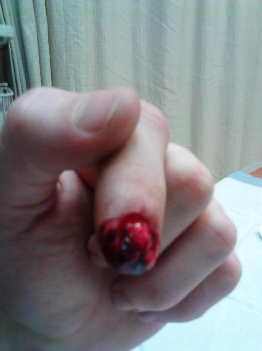 BlackHoleFTW's photos - injury.jpg